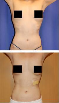 肋骨切除術(3本) - 美容外科医のモノローグ