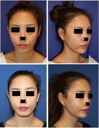 アキュリフト、(口元、顎下)、スプリングスレッド10本、法令線プロテーゼ、法令線剥離術 - 美容外科医のモノローグ