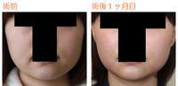 バッカルファット摘出術後1ヶ月目 - Dr勝間田のブログ