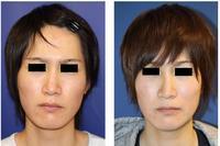 他院斜鼻変形治療術後修正術、左口角拳上術 - 美容外科医のモノローグ