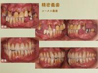 精密義歯 - くろまめ日記