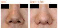 小鼻縮小術後1ヶ月目 - Dr勝間田のブログ