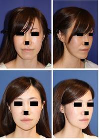 顎先骨切術術後半年 - 美容外科医のモノローグ