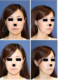 顎先骨切後顎先ヒアルロン酸注入 - 美容外科医のモノローグ