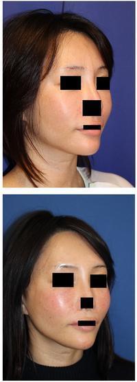 左頬プロテーゼ飛び出しに対する修正術 - 美容外科医のモノローグ