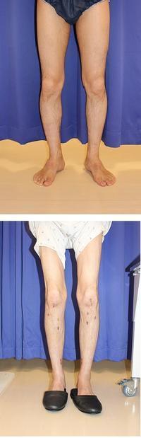 両脚ISKD(約10日後差で手術)術後約3か月 - 美容外科医のモノローグ