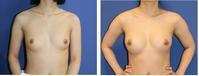 脂肪移植豊胸術一年に3回施術ピュアグラフト使用 - 美容外科医のモノローグ