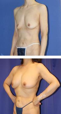 脂肪移植豊胸術後約3年半年 - 美容外科医のモノローグ
