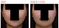 エラ削り(プランC)+顎削り(オトガイ骨切り)術後3ヶ月目 - Dr勝間田のブログ