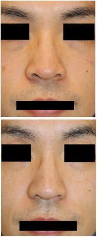 レーザー鼻尖縮小術、小鼻縮小術術後約半年 - 美容外科医のモノローグ