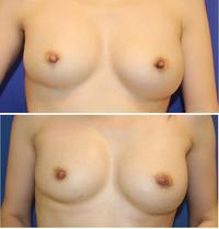 乳頭形成術術後約半年 - 美容外科医のモノローグ