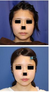 こめかみプロテーゼ、額アパタイト 形成術  術後約3か月 - 美容外科医のモノローグ