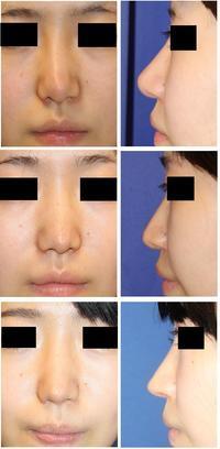 他院術後鼻修正術: 鼻背皮切術、鼻プロテーゼ抜去、鼻先軟骨移植除去+婦人科軟部組織移植 術後1年半 - 美容外科医のモノローグ