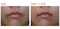 口角つり上げ(内側法)術後1ヶ月目 - Dr勝間田のブログ