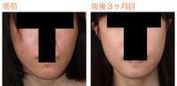 頬骨削り(再構築法)+顎削り(オトガイ骨切り) 術後3ヶ月目 - 美容外科ライフクリニックの症例