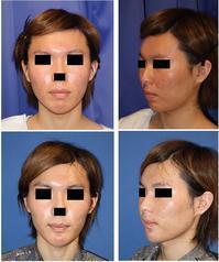 上下顎セットバック , 口角拳上(内側法) 術後約3週間 :  性転換手術をお考えの方へ船橋氏の御紹介 - 美容外科医のモノローグ