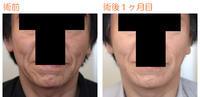 頬リフト(ミニリフト)術後1ヶ月目 - Dr勝間田のブログ