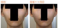 頬骨削り(再構築法) 術後1ヶ月目 - 美容外科ライフクリニックの症例