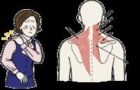 肩こり その1 症状 - 横浜市南区弘明寺 原整形外科医院のブログ