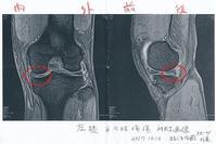 左膝半月板損傷と診断される!! - 阿讃の山と谷