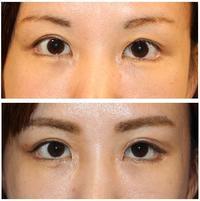 右蒙古ヒダ形成術 術後約半年、 左蒙古ヒダ形成術 術後約2か月 - 美容外科医のモノローグ
