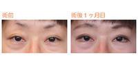 タレ目形成(外側法)術後1ヶ月目 - Dr勝間田のブログ