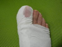 足がこんなになったぁー! - 革職人 TOSHI
