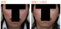 頬骨削り(再構築法)+バッカルファット術後1ヶ月目 - Dr勝間田のブログ