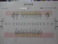 まさかの抜歯 - がちゃぴん秀子の日記