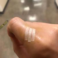 Stitches - Where I belong