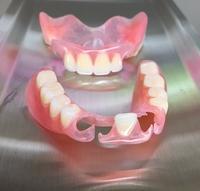 金属を使わない入れ歯 - メグデンブログ