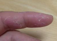 釣りで指の皮が剥ける - 虫と