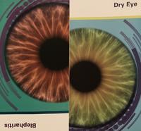 眼医者にベビーシャンプーを勧められるMGD - ののち幾星霜