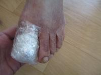 爪の傷 - どうしちゃったんだよ、お母さん。