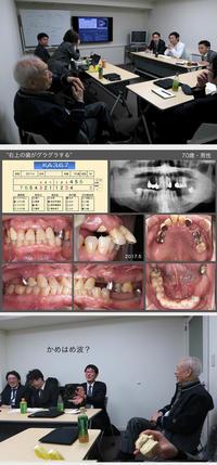 もぐら塾2018・第1回〜欠損歯列のみかた〜 - 中舘歯科診療所のブログ:あとみよそわか