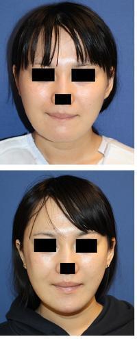 ミニリフト+頬骨アーチインフラクチャー(頬骨骨切術) - 美容外科医のモノローグ
