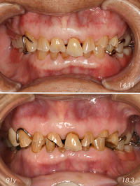 咬合高径と咬合崩壊 - 中舘歯科診療所のブログ:あとみよそわか