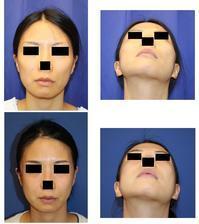 頬骨 V字骨切術  術後 約半年 再診 - 美容外科医のモノローグ
