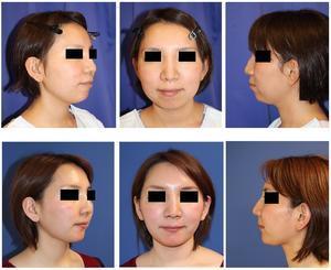 上下歯槽骨骨切後方移動術(上下歯槽骨セットバック術),頬 および 顎下 脂肪吸引 術後半年 - 美容外科医のモノローグ