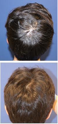 頭頂部のつむじをもっと毛を濃く  : HARG 療法   (薬剤注射による育毛療法) - 美容外科医のモノローグ