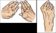 関節リウマチ その1 症状 - 横浜市南区弘明寺整形外科リハビリ「原整形外科医院」のブログ