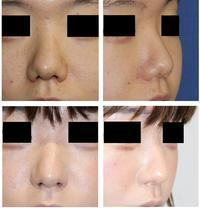 小鼻肉厚減幅術 鼻孔縁拳上術 術後約3年半 - 美容外科医のモノローグ