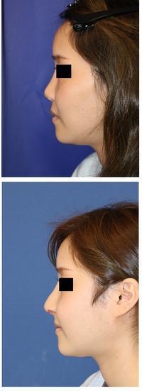 他院鼻中隔延長術術後 修正術 (肋軟骨使用) 、 他院鼻孔縁延長術 術後修正術  、大陰唇軟部組織移植術 - 美容外科医のモノローグ