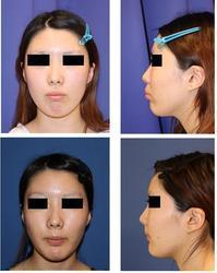 他院歯科矯正治療中断上下歯槽骨骨切術(セットバック)術後3週間 - 美容外科医のモノローグ