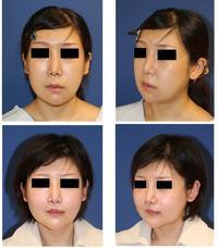 中顔面短縮術(LeFortⅠ型骨切術+SSRO),顎先骨切前方移動術,バッカルファット摘出術術後約一年半,人中短縮術,口角拳上,顎下ベイザー、ミントリフト,ミラクルリフト術後約半年再診時 - 美容外科医のモノローグ