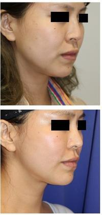 ほうれい線剥離術 , 脂肪再配置術(FAMI法),ミントリフトミニⅡ 術後8か月再診時 - 美容外科医のモノローグ