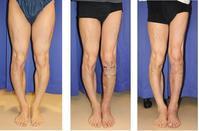 左下腿 脚延長  precice(プリサイス)  術後約3カ月   - 美容外科医のモノローグ