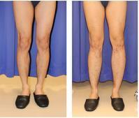 脚延長術 (ディバスティアーニ変法) 初回手術から約2年後 - 美容外科医のモノローグ