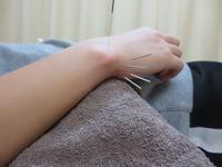 手首の痛み(TFCC)・日進市の中学生 - 日進市のトライ鍼灸接骨院ブログ