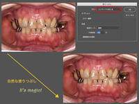 Photoshop便利ツール&コマンド2 - 中舘歯科診療所のブログ:あとみよそわか